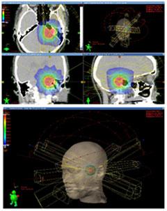 放射線治療計画システム
